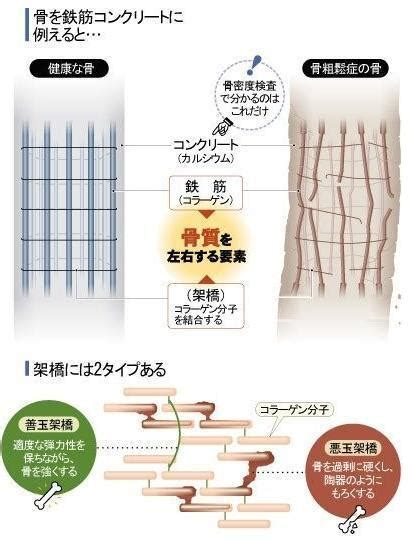 AGEsと骨質劣化について - 外科医 アンチエイジングに目覚める!?